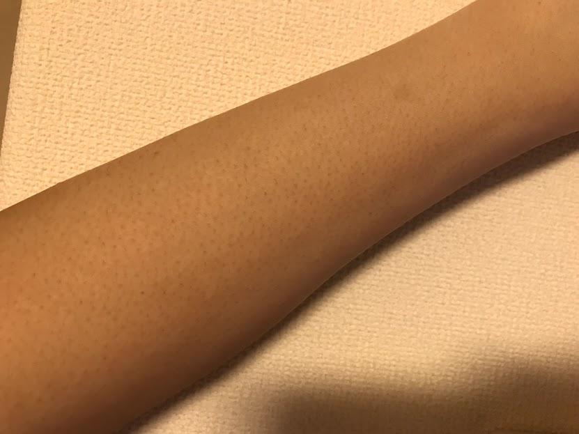 ゴリラクリニック 腕